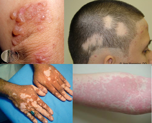 Skin conditions dermatitis herpetiformis