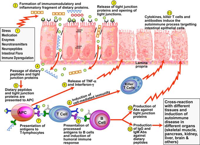 pathogenesis autoimmune
