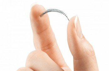 Essure celiac disease trigger