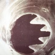 Hookworm for celiacs
