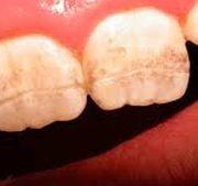 Teeth can be damaged by celiac disease. (Canadian Dental Association)