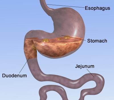 Celiac duodenum