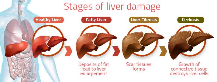 celic-disease-liver-disease
