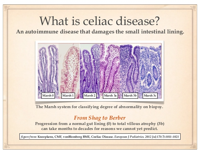 Marsh-Score-Celiac-Disease