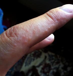 Dermatitis-herpetiformis-290x300