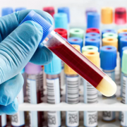 new blood test celiac disease WP