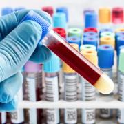 new blood test celiac disease WP