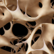 Osteoporosis Diagnosis Disease