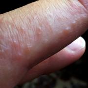 Dermatitis Herpetiformis wp