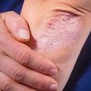 psoriatic-arthritis-celiac-disease