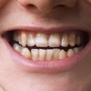 teeth celiac disease wp