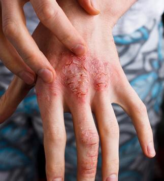 eczema_atopic_dermatitis-celiac-disease