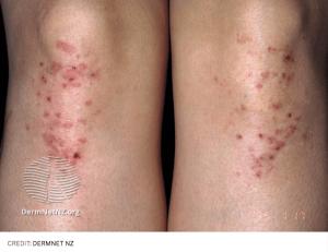 celiac disease dermatitis herpetiformis rash
